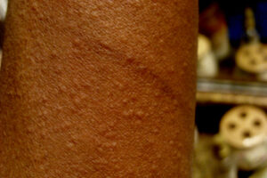 Cholinergic urticaria: Heat or exercise induced hives